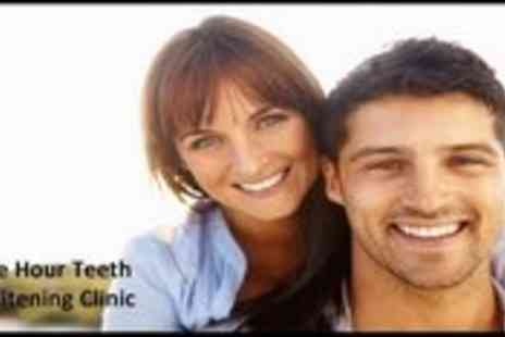 One Hour Teeth Whitening Clinic - 60 Minute Teeth Whitening Treatment - Save 83%