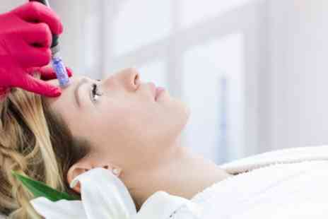 Pro Clinics - One Session of Microneedling Facial - Save 59%