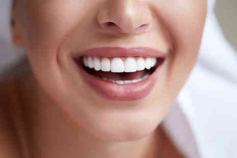 Euro Dental Care - 6 Months Smiles clear braces treatment on one upper or lower arch - Save 46%