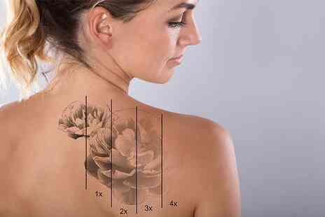 The Stables - One session of laser tattoo removal on a small area - Save 0%
