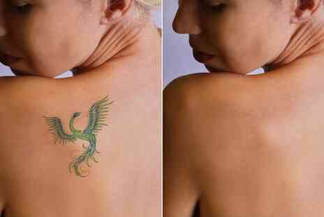Serenity Beauty and Hair - One session of tattoo removal on a 3 Inch x 3 Inch area - Save 50%