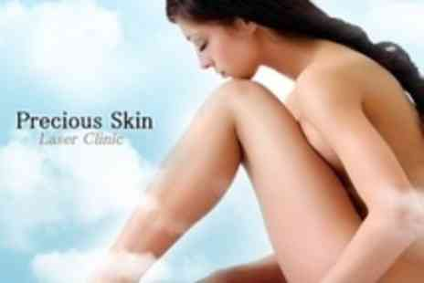 Precious Skin Laser Clinic - Three IPL Thread Vein Treatments on Two Areas - Save 84%