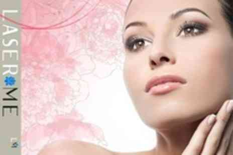 Laser Me - One Hour Decleor Facial With 30 Minute Back Massage - Save 66%