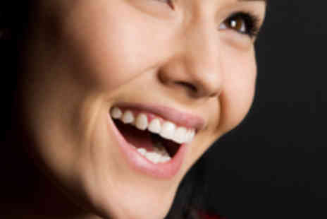 Sweet Smiles - Dental Veneer - Save 55%