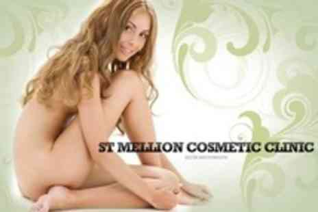 St Mellion Cosmetic Clinic - Six Sessions of IPL Hair Removal on One Large Areas - Save 85%