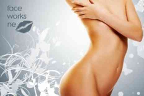 Faceworks NE - Three 20 Minute Laser Lipolysis Sessions - Save 87%