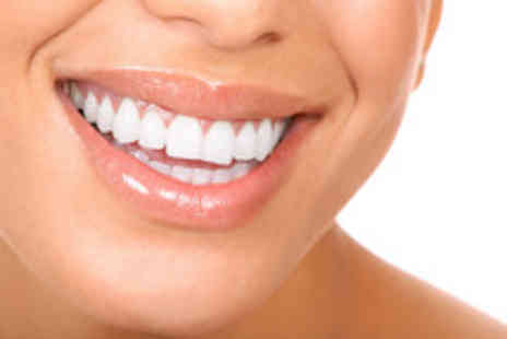 London Dental Centre - LED teeth whitening inc full dental examination scale & polish - Save 72%