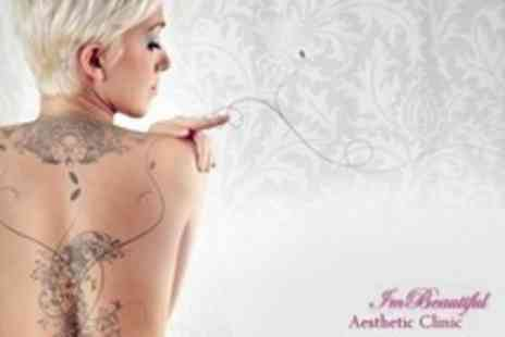 Im Beautiful Aesthetic Clinic - Laser Tattoo Removal Sessions - Save 70%