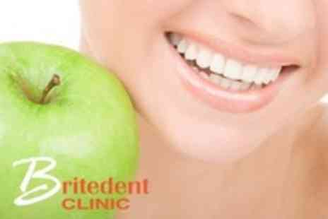 Britedent Clinic - Dental Examination With Scale and Polish - Save 80%