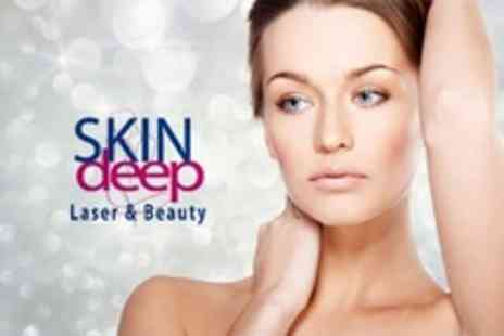 Skindeep Laser and Beauty - One Microdermabrasion Or Facial Sessions - Save 69%