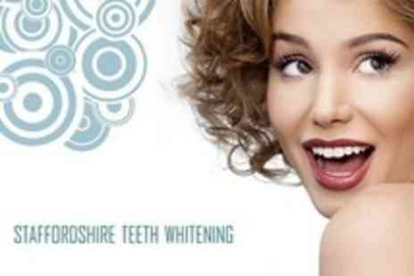 Staffordshire LED Teeth Whitening - One Teeth Whitening Session - Save 72%