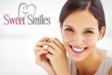 Sweet Smiles - Same Day Veneers - Save 54%