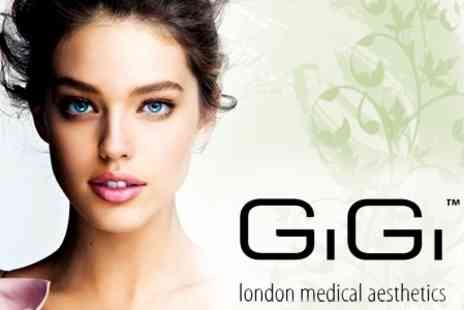 GiGi London Medical Aesthetics - Medical Grade Facial Peel or Salt Microdermabrasion Including IPL Photo Revitalisation And More - Save 67%