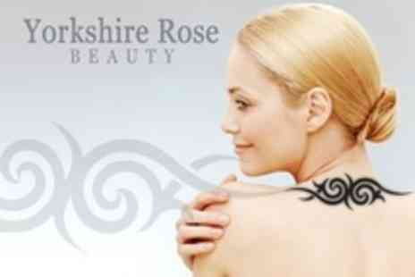 Yorkshire Rose Beauty - Three Laser Tattoo Removal Sessions - Save 18%