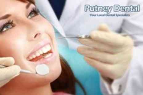 Putney Dental - Scale and Polish With Consultation Plus Oral Screening - Save 50%