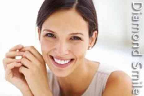 Diamond Smile - Teeth Whitening - Save 80%