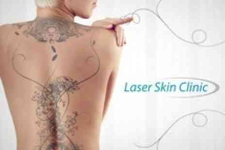 Laser Skin Clinic - Three Laser Tattoo Removal Sessions - Save 75%