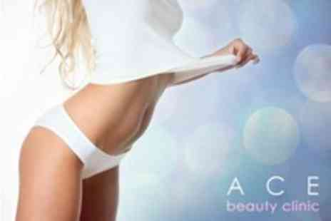 ACE Beauty Clinic - Three Laser Lipolysis and Vibration Plate Sessions - Save 70%