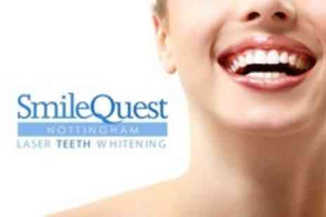 Smile Quest - Laser Teeth Whitening - Save 76%