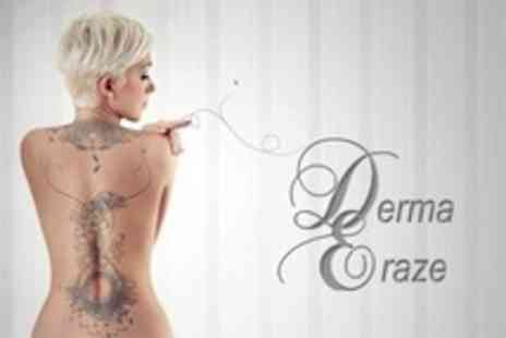 Derma Eraze - Four Sessions Laser Tattoo Removal on One Small - Save 79%