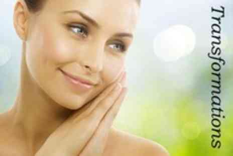 Transformations - One Session of Microdermabrasion Facial - Save 50%