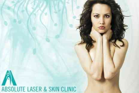 Absolute Laser & Skin Clinic - Six Sessions of Photo Skin Revitalisation and Thread Vein Removal - Save 84%