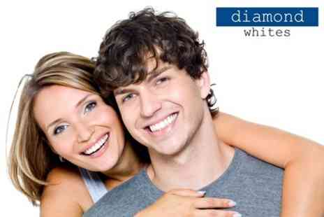 Diamond Whites - Laser Teeth Whitening - Save 81%