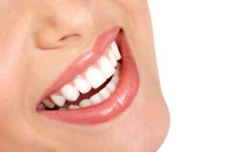 Bright Smile - Teeth whitening - Save 83%