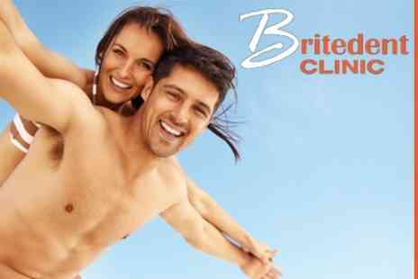 Britedent Clinic - Inman Aligner Adult Brace for Upper or Lower Arch - Save 55%