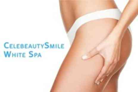 CelebeautySmile White Spa - Lipoglaze Cryotherapy Treatment - Save 90%