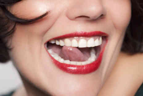 GlamWhite - Home Teeth Whitening Kit - Save 87%