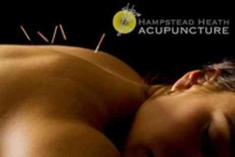 Hampstead Heath Acupuncture - Massage and Acupuncture Treatment With Consultation - Save 74%