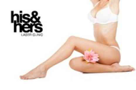 His and Hers Laser Clinic - Laser Hair Removal Six Sessions on Choice of Areas - Save 26%
