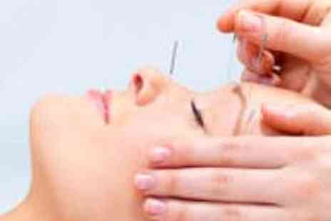 GinSen - Facial Acupuncture and Infrared Lamp Treatment - Save 73%