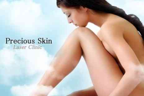 Precious Skin Laser Clinic - IPL Thread Vein Treatment Three Sessions on Two Areas - Save 84%