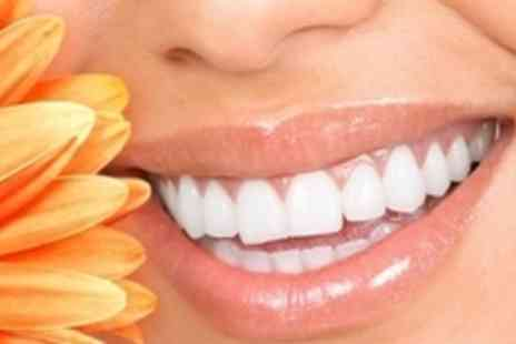 Aesthetic Angels - Session of laser teeth whitening - Save 61%