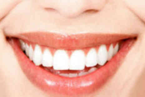 White Spa - One hour teeth whitening - Save 87%