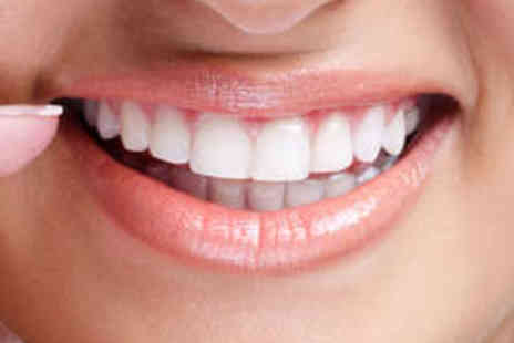 The Perfect Smile - Dental Exam, X Rays, and Scale and Polish - Save 82%