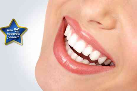 Rite Smile - One hour teeth whitening session - Save 84%