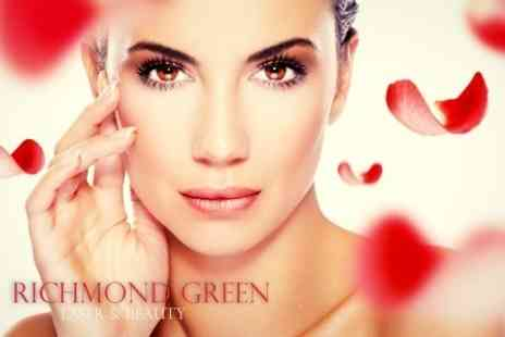Richmond Green Laser and Beauty - IPL Thread Vein Treatment Four Sessions - Save 19%