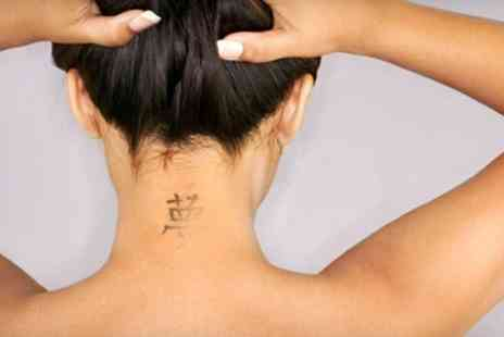 Laser Tattoo Removal - Laser Tattoo Removal Three Sessions - Save 60%
