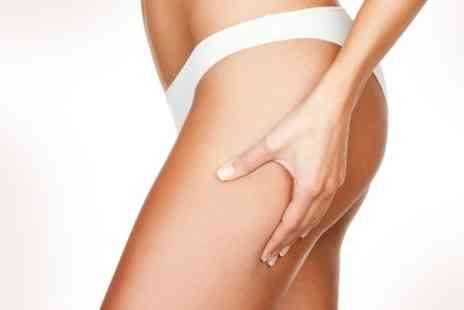 Aurox Lasers - Cryogenic Lipolysis and Radio Frequency For Two Areas - Save 34%
