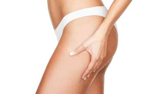 Allure Clinic - Three laser lipolysis Sessions - Save 84%