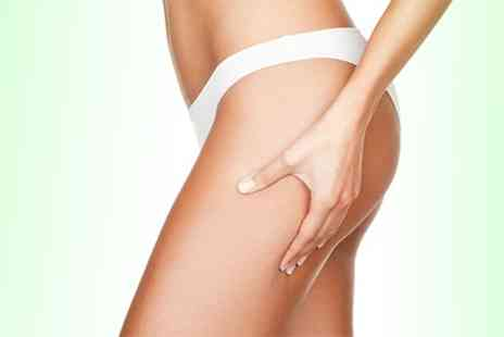 The Bromley Wellness Clinic - Three Laser Lipolysis - Save 54%