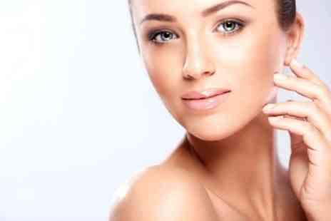 Beyond Beauty - Thread Vein Acne or Skin Pigmentation Laser Treatment  - Save 89%
