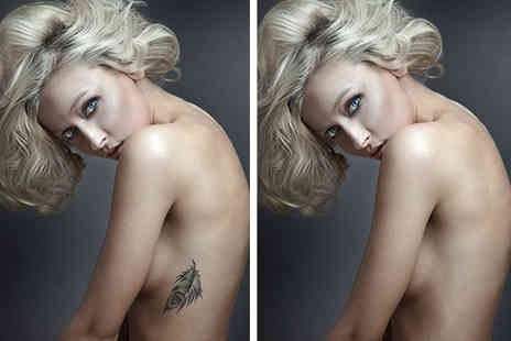 VIP Beauty Clinic - Three laser tattoo removal sessions on a 3 x 3 area - Save 73%