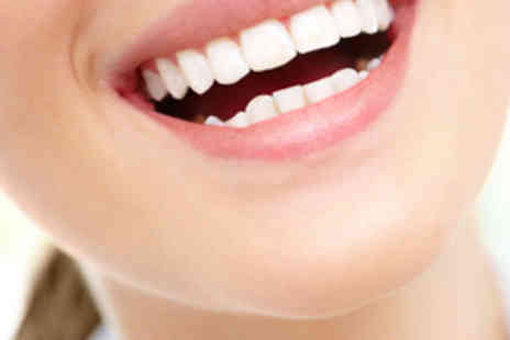 Smile Quest - Laser Teeth Whitening Session for One - Save 82%