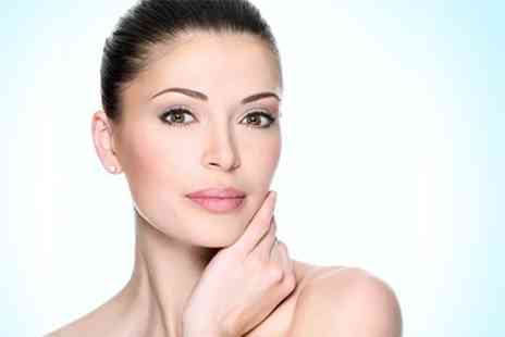 Shape Up Tone Down - Six Thread Vein Treatment Sessions - Save 90%