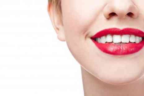 Vital Cosmetics - Laser Teeth Whitening Treatment - Save 86%