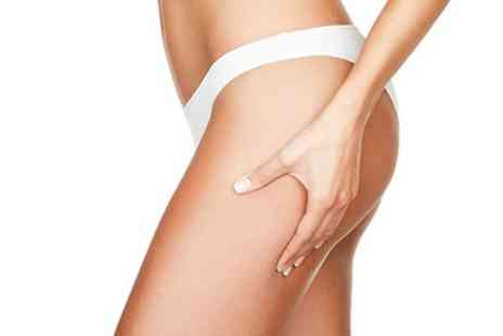 Illusionz Salon - Cryogenic Lipolysis on One Area - Save 70%